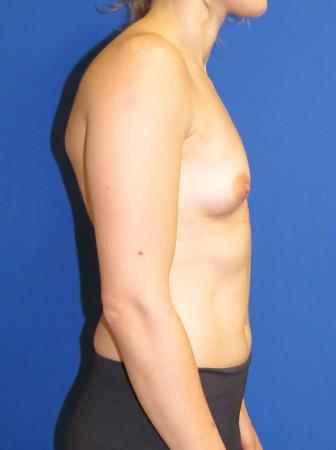 Breast Augmentation: Patient 2 - Before Image 1