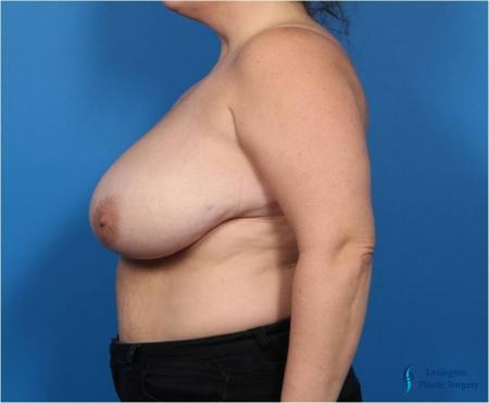 Breast Reduction: Patient 4 - Before and After Image 5