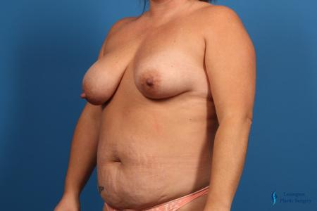 Abdominoplasty: Patient 1 - Before Image 2