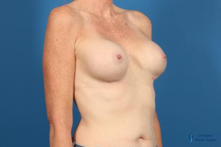 Breast Implant Exchange: Patient 1 - After Image 2
