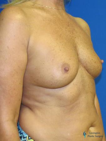 Breast Augmentation With Lift: Patient 1 - Before Image 2