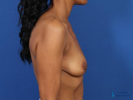 Breast Augmentation Revision: Patient 1 - Before and After Image 3