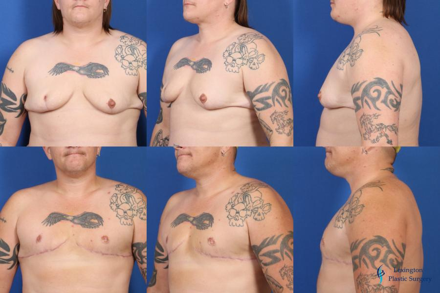 Top Surgery - Female To Male: Patient 3 - Before and After Image