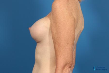 Breast Implant Exchange: Patient 1 - After Image 5