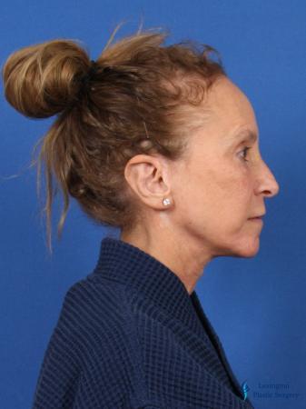 Facelift & Neck Lift: Patient 3 - After Image 3