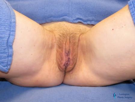 Labiaplasty: Patient 14 - After Image 1