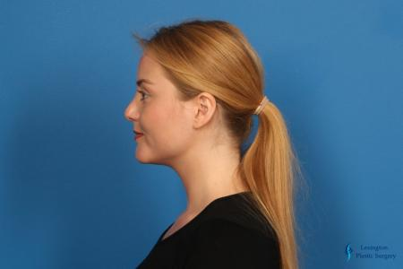 Chin Augmentation: Patient 1 - After Image 4