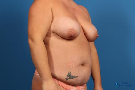 Abdominoplasty: Patient 1 - Before Image 4