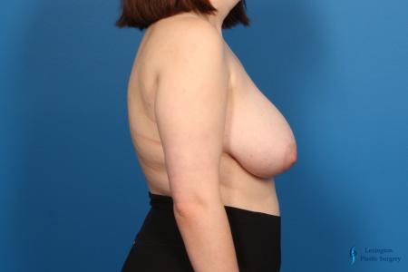 Breast Reduction: Patient 6 - Before Image 2