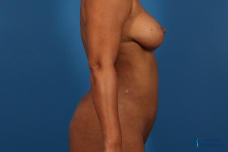 Liposuction: Patient 1 - After Image 3