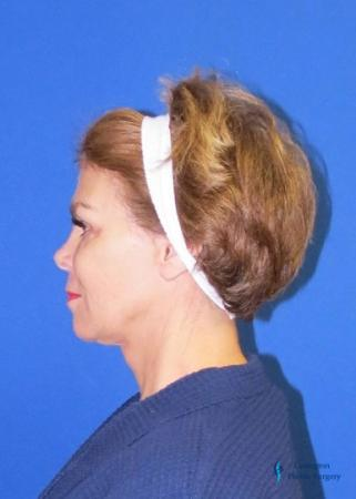 Facelift & Neck Lift: Patient 2 - After Image 1