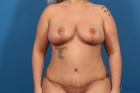 Breast Lift: Patient 5 - After Image 1