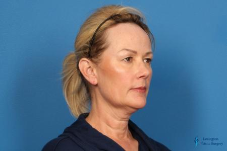Facelift & Neck Lift: Patient 4 - Before Image 2