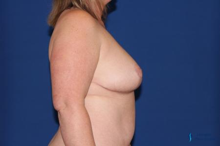 Breast Reduction: Patient 3 - After Image 6
