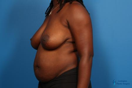 Breast Lift: Patient 4 - Before Image 1