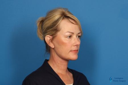 Facelift & Neck Lift: Patient 4 - After Image 2