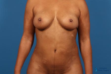 Liposuction: Patient 1 - After Image 1