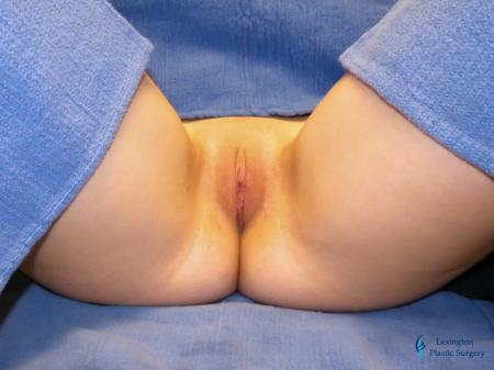 Labiaplasty: Patient 9 - After Image