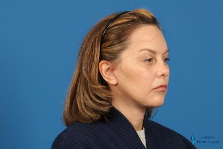 Facelift: Patient 2 - After Image 4