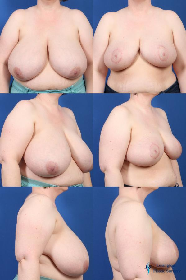 Breast Reduction: Patient 2 - Before and After Image
