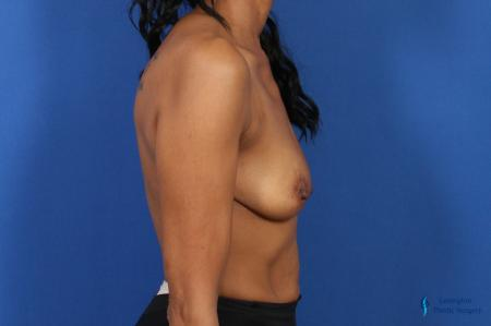 Breast Augmentation: Patient 8 - Before Image 3