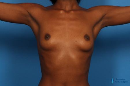 Breast Augmentation: Patient 9 - Before Image