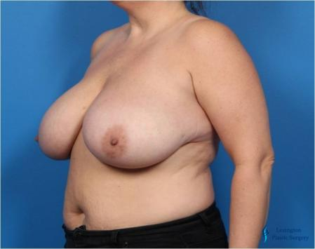 Breast Reduction: Patient 4 - Before Image 4