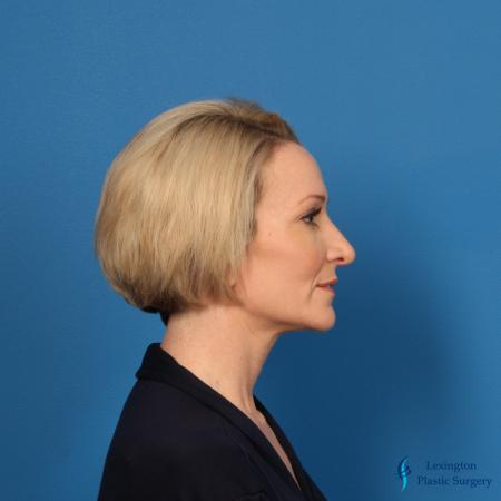 Rhinoplasty Revision: Patient 1 - After Image 1