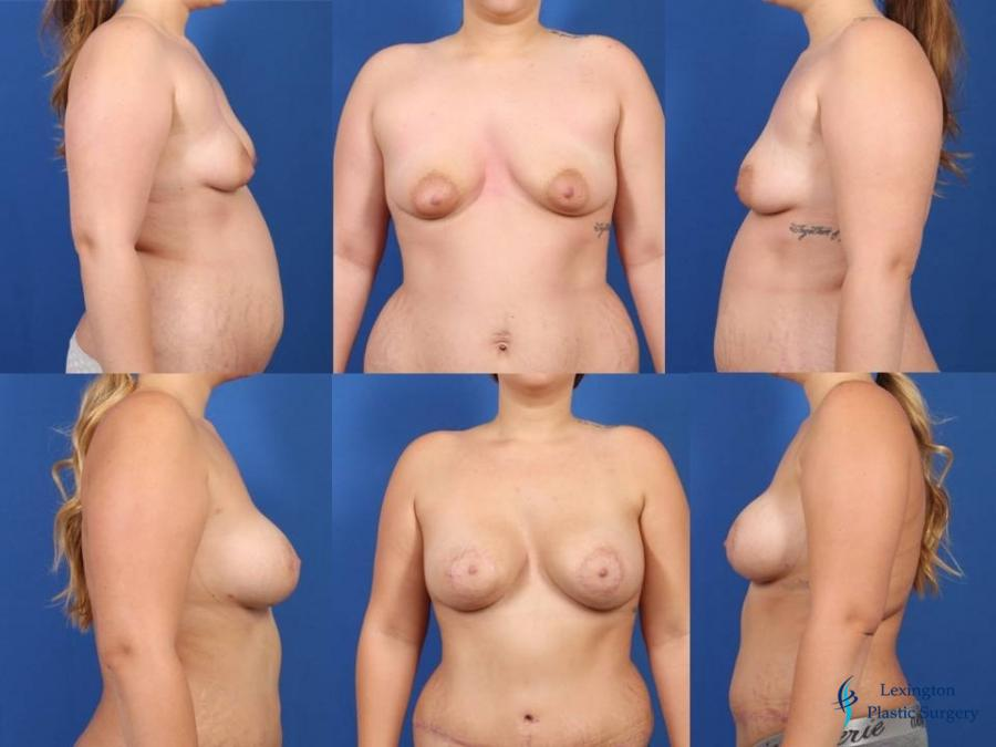 Breast Augmentation With Lift: Patient 2 - Before and After Image
