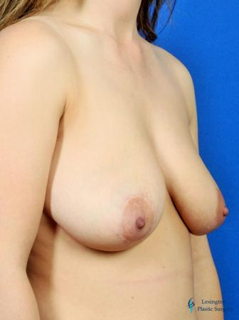 Breast Lift And Augmentation: Patient 2 - Before Image 2