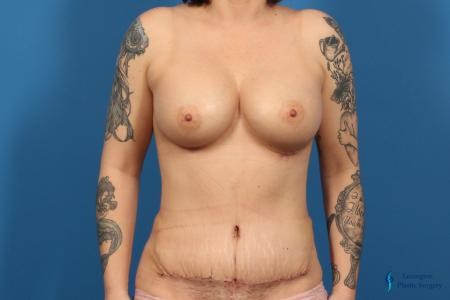 Breast Augmentation: Patient 11 - After Image 1