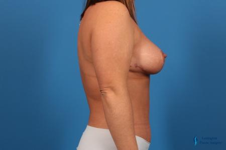 Abdominoplasty: Patient 1 - After Image 5