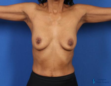 Breast Augmentation: Patient 8 - Before and After Image 6