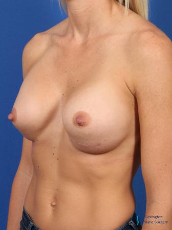 Breast Augmentation: Patient 7 - After Image 4
