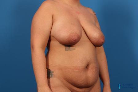 Abdominoplasty: Patient 2 - Before Image 4
