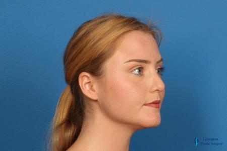 Chin Augmentation: Patient 1 - After Image 6