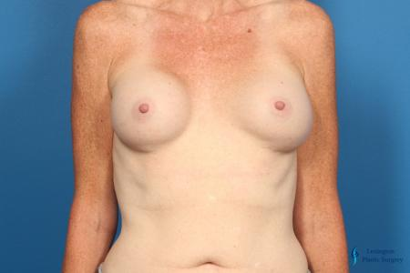 Breast Implant Exchange: Patient 1 - Before Image 1