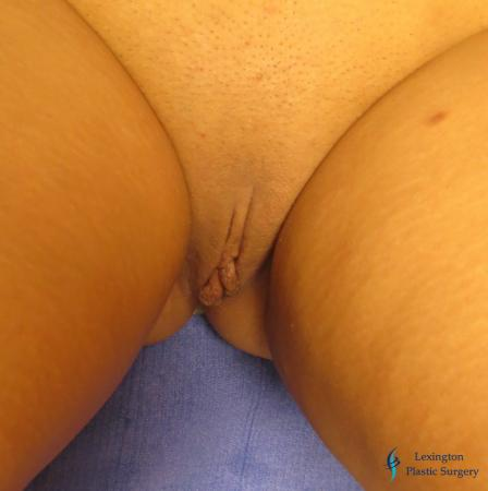 Labiaplasty: Patient 1 - Before Image