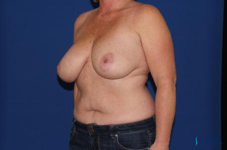 Breast Reduction: Patient 3 - Before Image 3