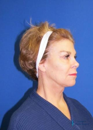 Facelift & Neck Lift: Patient 2 - After Image 4