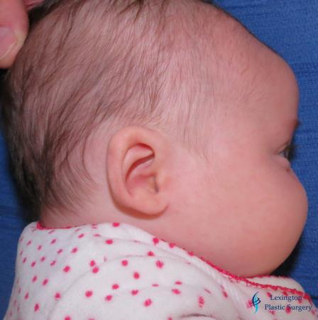 Ear Surgery: Patient 1 - After Image 2