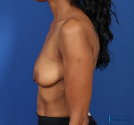 Breast Augmentation: Patient 8 - Before Image 5