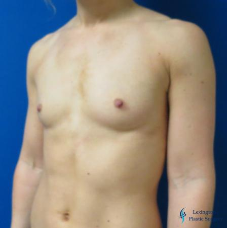 Breast Augmentation: Patient 5 - Before Image 2