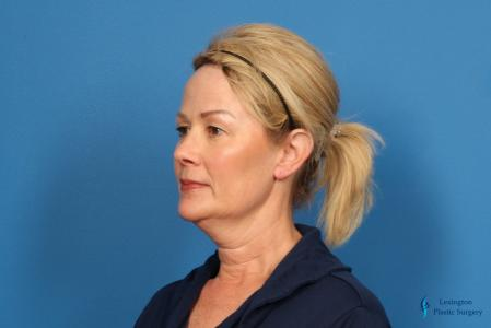 Facelift & Neck Lift: Patient 4 - Before Image 4