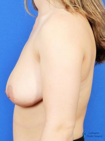 Breast Lift And Augmentation: Patient 2 - Before and After Image 5