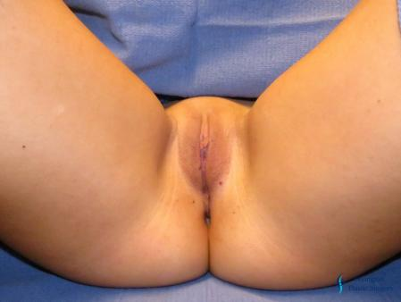 Labiaplasty: Patient 16 - After Image 1