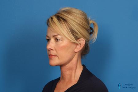 Facelift & Neck Lift: Patient 4 - After Image 4