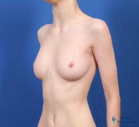 Top Surgery - Female To Male: Patient 4 - Before Image 6
