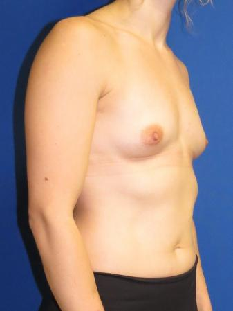 Breast Augmentation: Patient 2 - Before Image 2