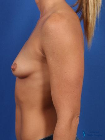 Breast Augmentation: Patient 7 - Before and After Image 5